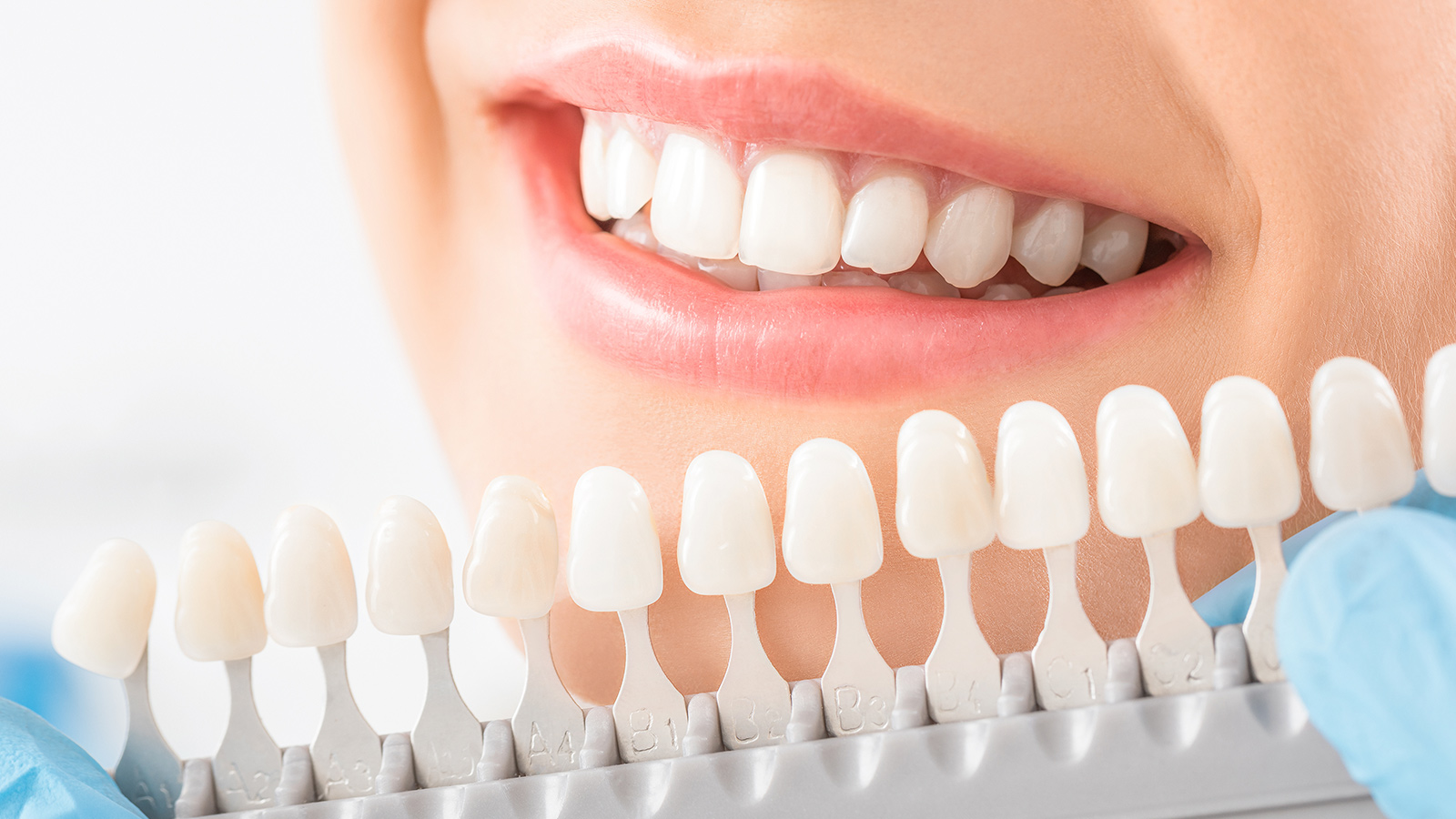 Spotlight Strips Teeth Whitening – What Every Person Should Consider